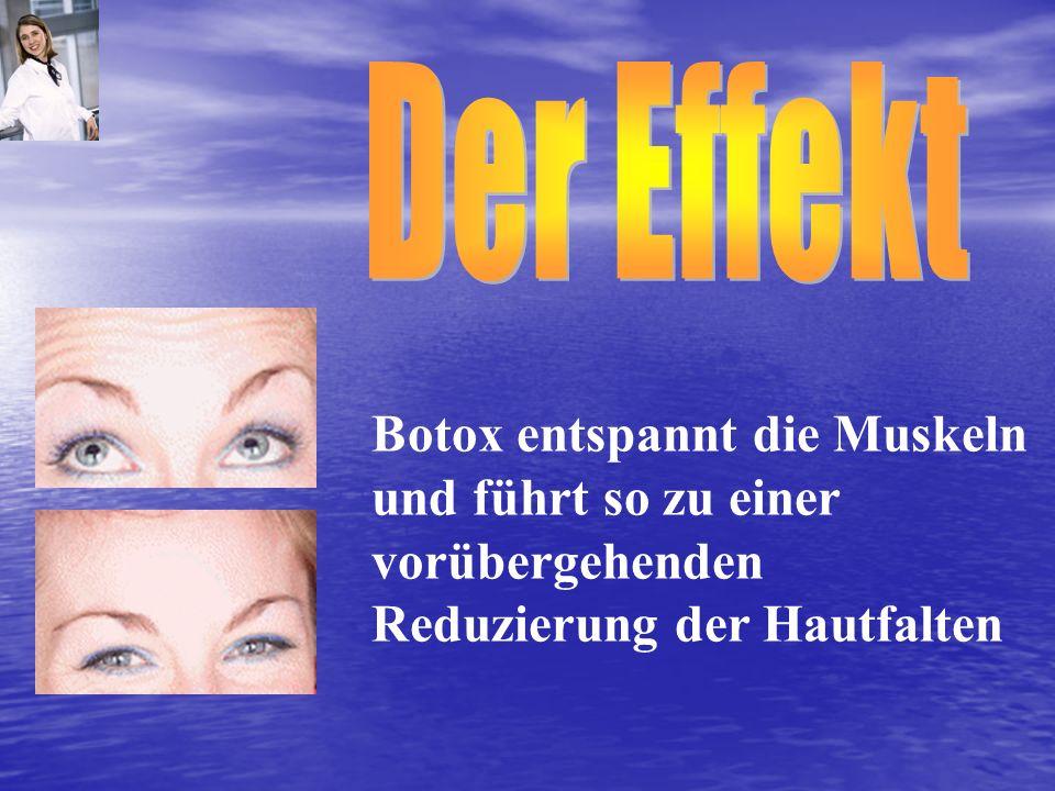 Der Effekt Botox entspannt die Muskeln und führt so zu einer vorübergehenden Reduzierung der Hautfalten.