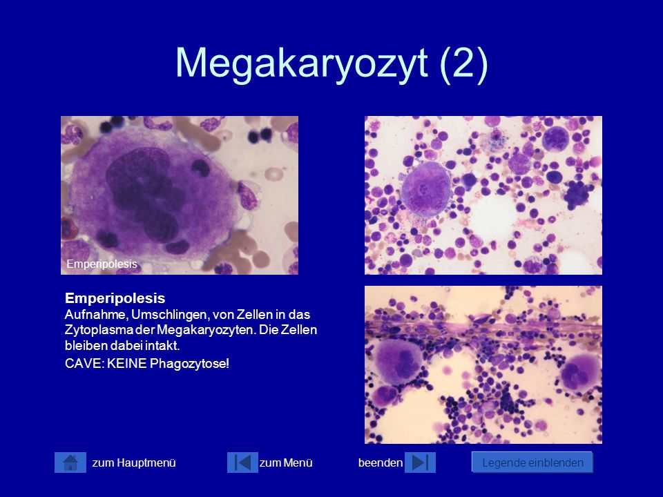 Megakaryozyt (2) Emperipolesis.