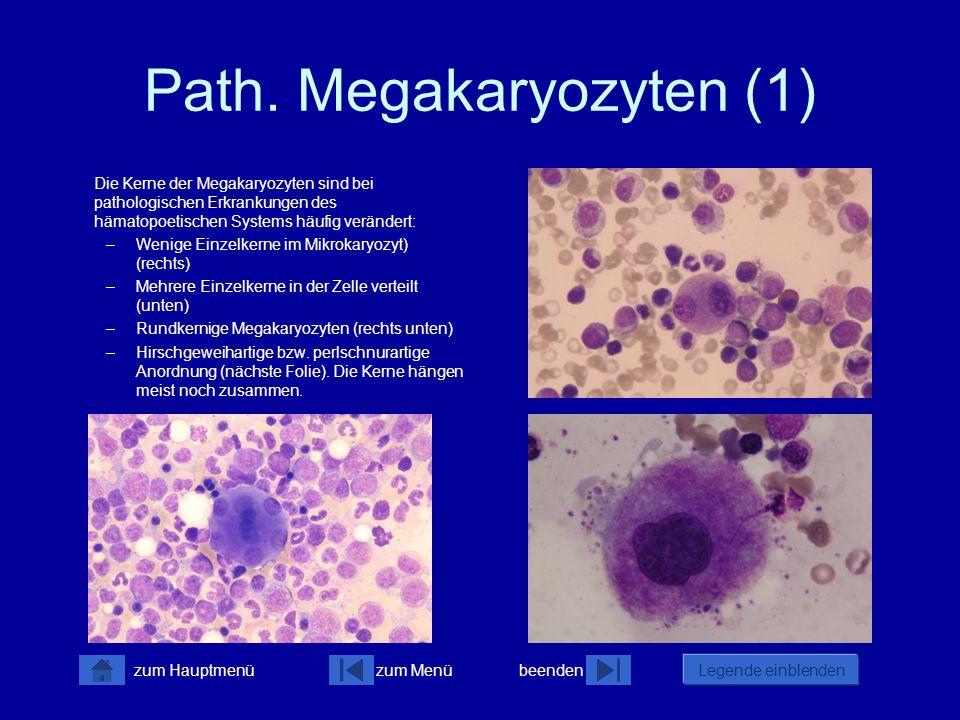 Path. Megakaryozyten (1)