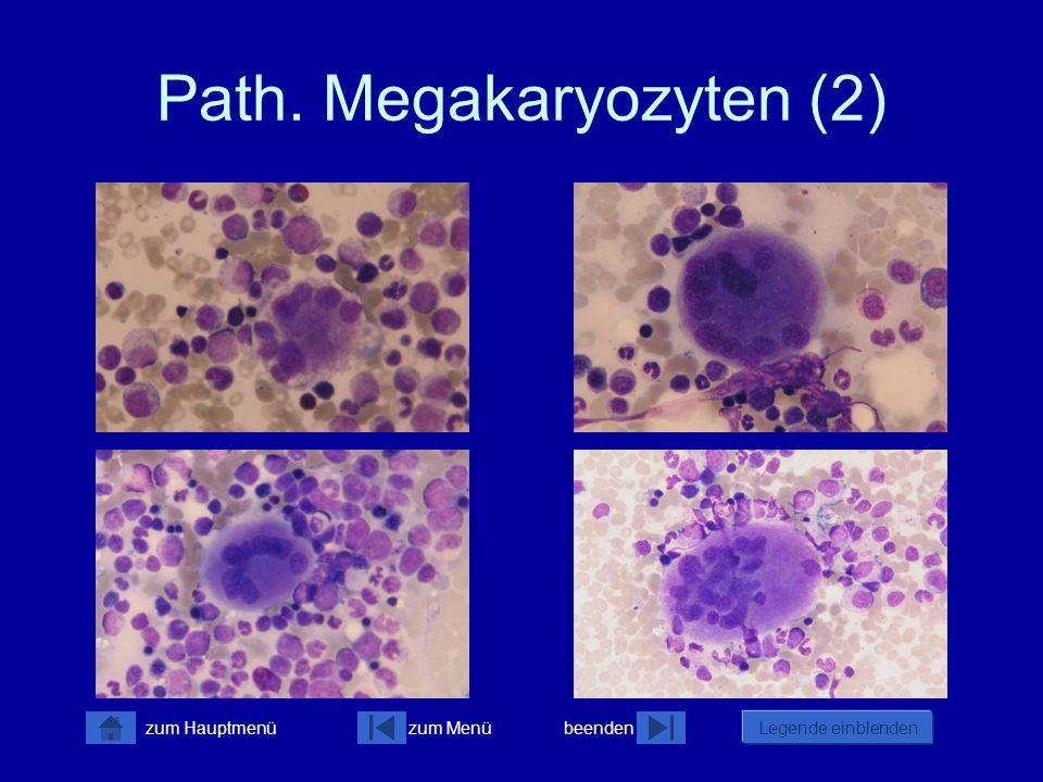 Path. Megakaryozyten (2)