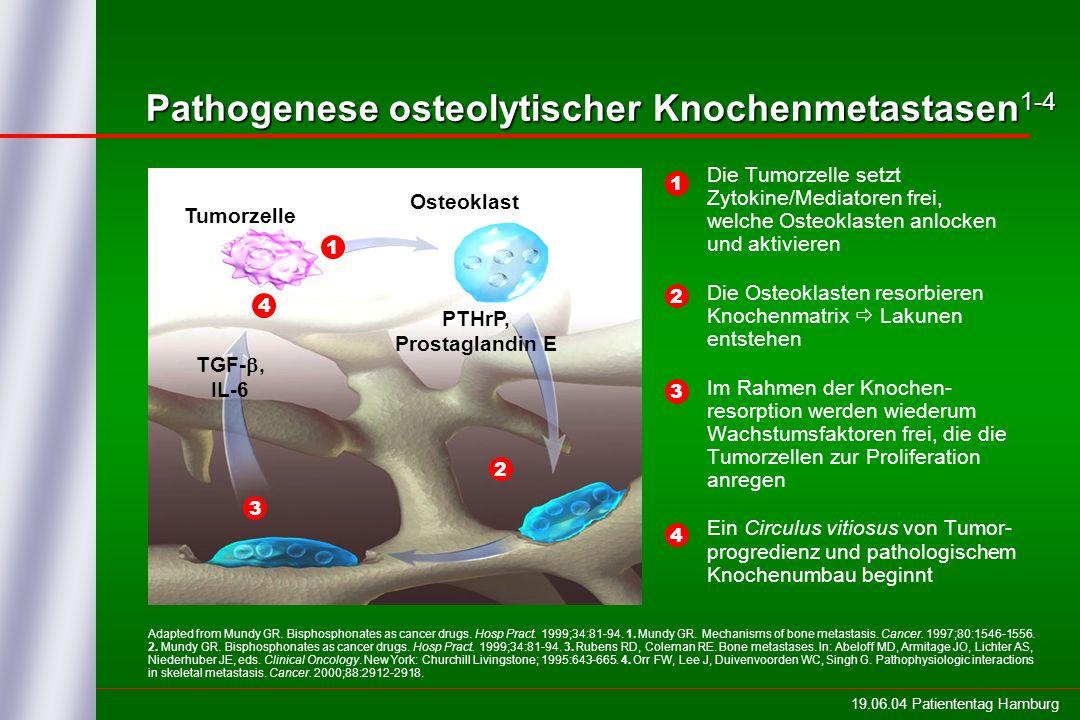 Pathogenese osteolytischer Knochenmetastasen1-4