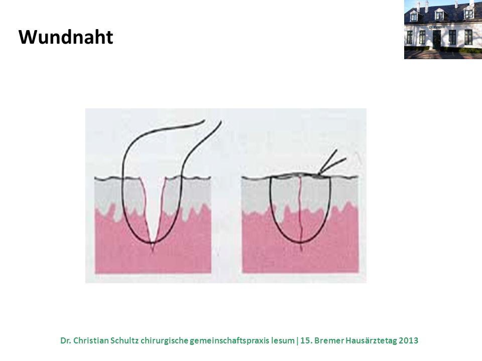Wundnaht Dr. Christian Schultz chirurgische gemeinschaftspraxis lesum  15.