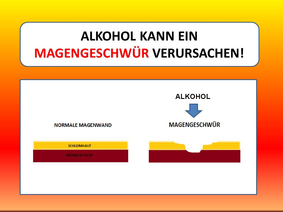 ALKOHOL KANN EIN MAGENGESCHWÜR VERURSACHEN!