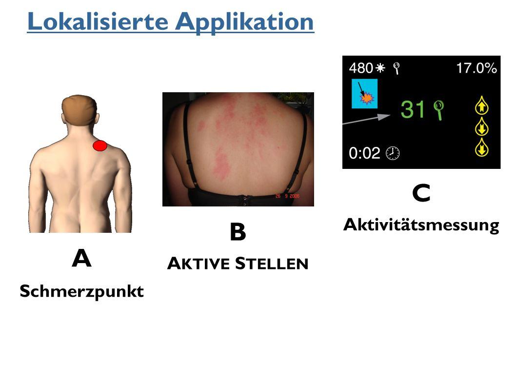 C Aktivitätsmessung B AKTIVE STELLEN A