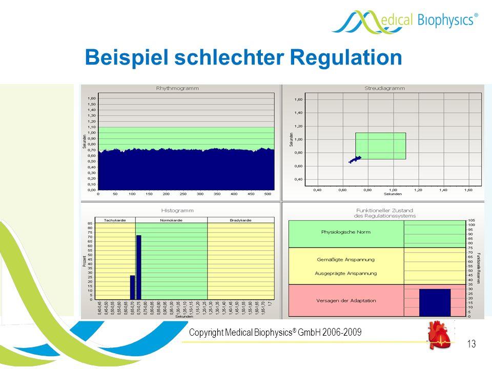Beispiel schlechter Regulation