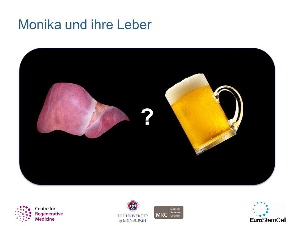 Monika und ihre Leber Slide 4: Szenario 1 – Monika und ihre Leber