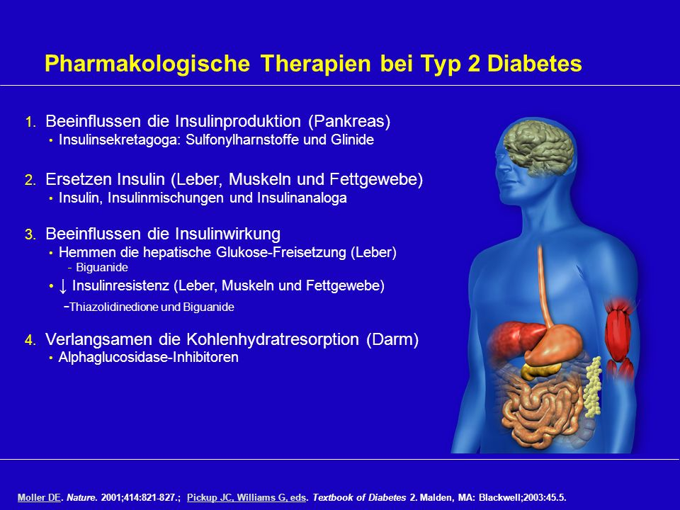 Pharmakologische Therapien bei Typ 2 Diabetes