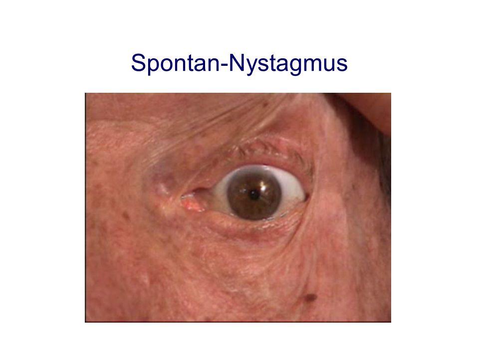 Spontan-Nystagmus