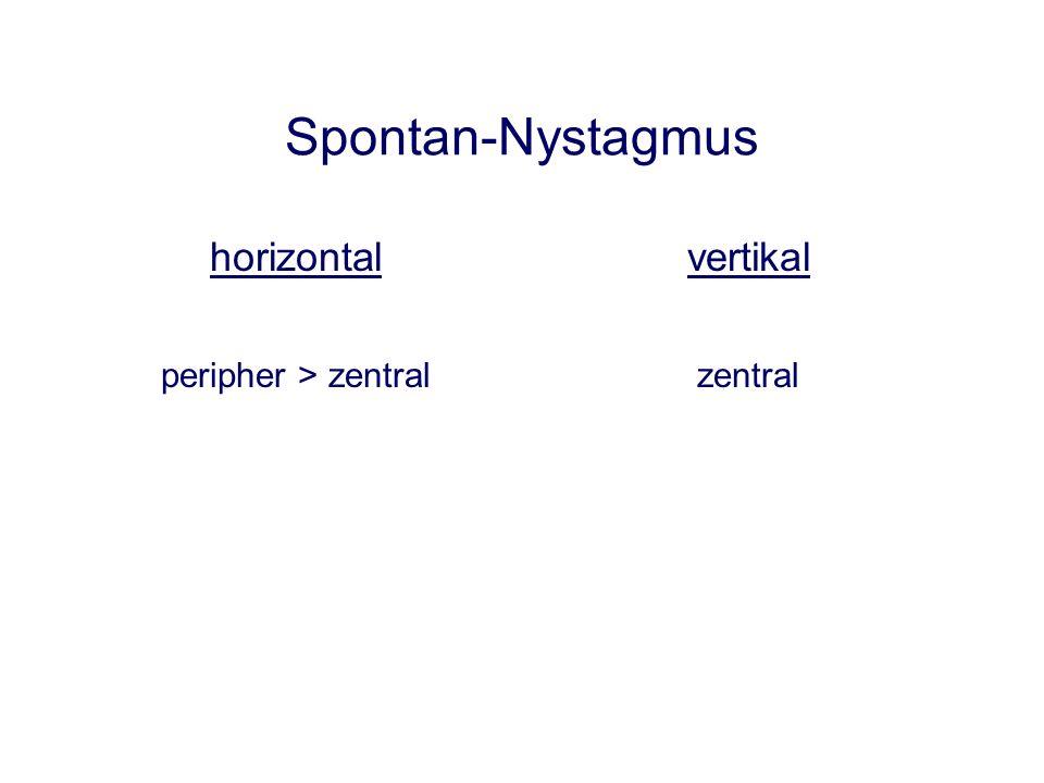 Spontan-Nystagmus horizontal vertikal peripher > zentral zentral