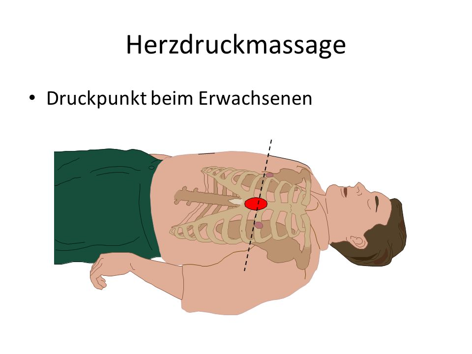 Herzdruckmassage Druckpunkt beim Erwachsenen