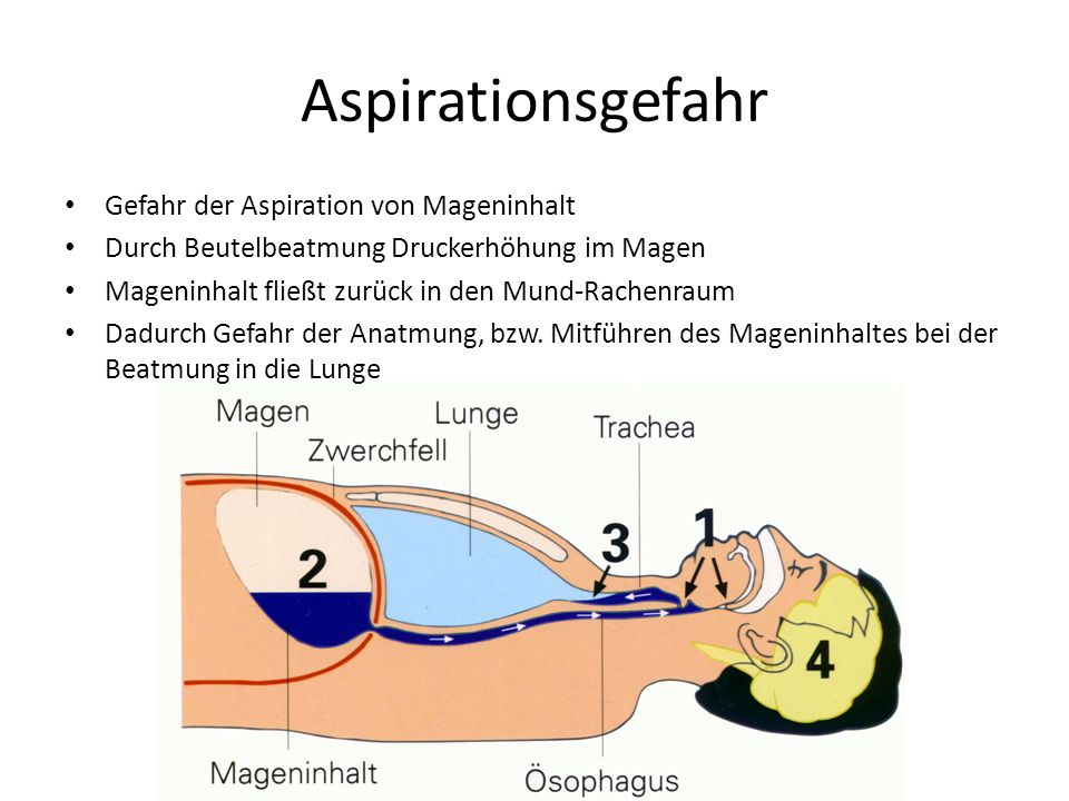 Aspirationsgefahr Gefahr der Aspiration von Mageninhalt