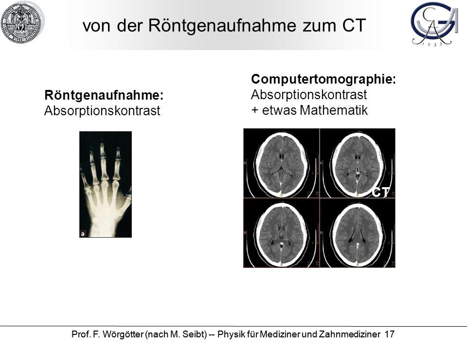 von der Röntgenaufnahme zum CT