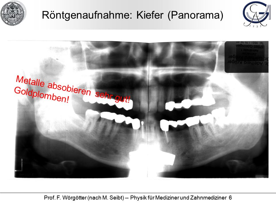 Röntgenaufnahme: Kiefer (Panorama)