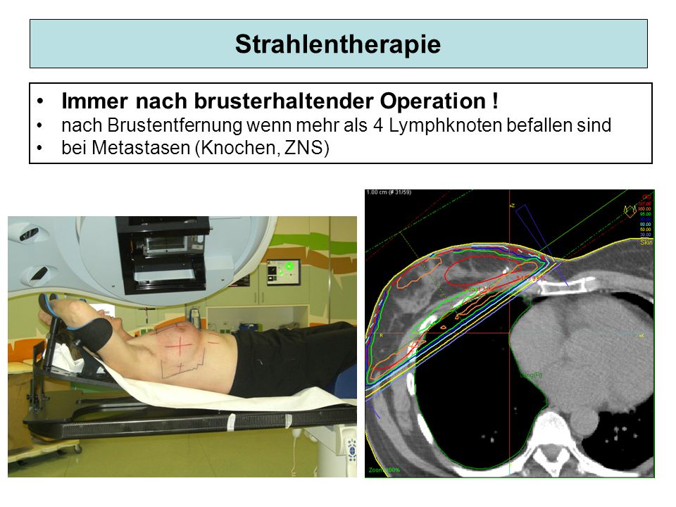 Strahlentherapie Immer nach brusterhaltender Operation !