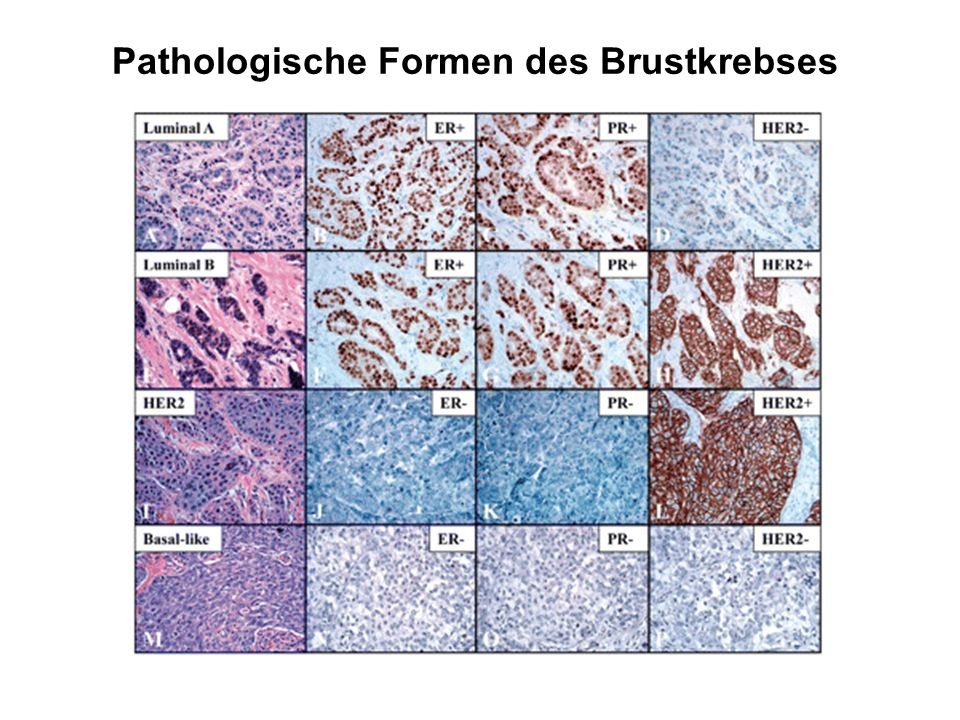 Pathologische Formen des Brustkrebses