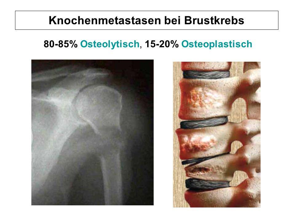 Knochenmetastasen bei Brustkrebs