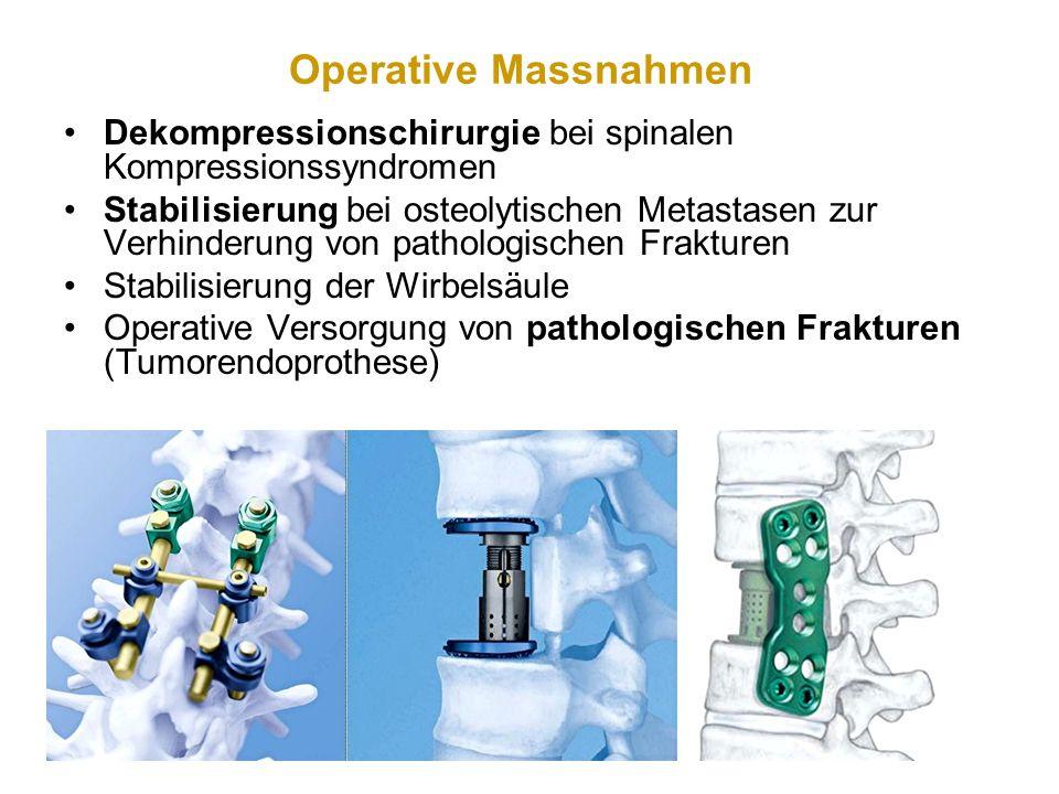Operative Massnahmen Dekompressionschirurgie bei spinalen Kompressionssyndromen.