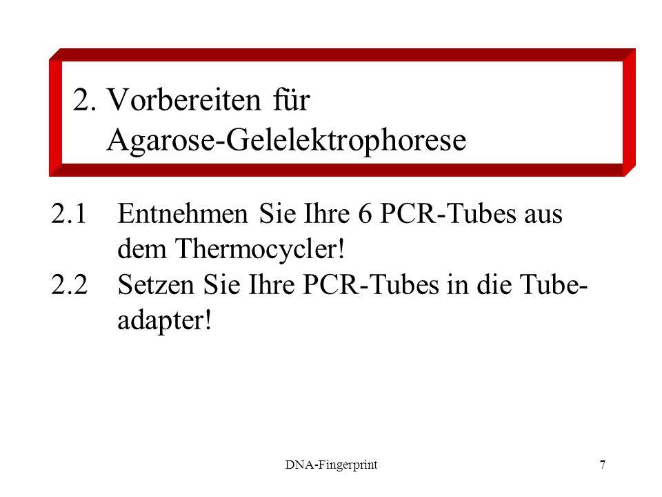 2. Vorbereiten für Agarose-Gelelektrophorese