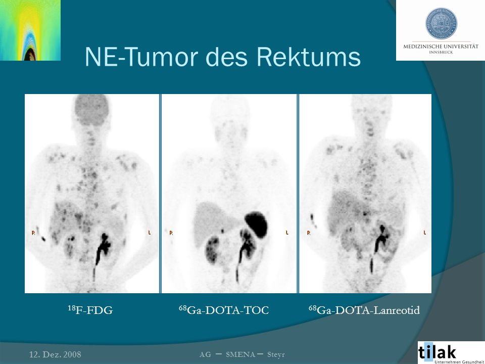 NE-Tumor des Rektums 18F-FDG 68Ga-DOTA-TOC 68Ga-DOTA-Lanreotid
