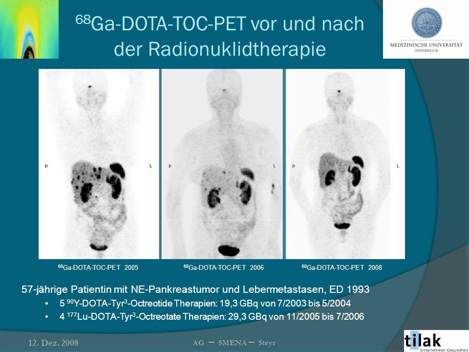 68Ga-DOTA-TOC-PET vor und nach der Radionuklidtherapie