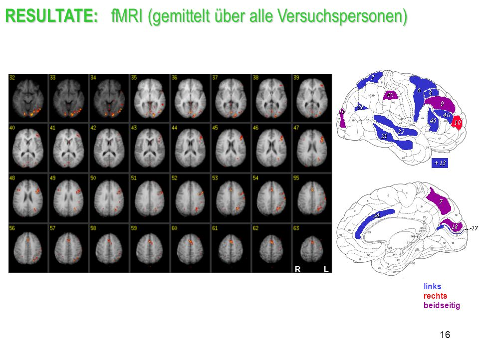 RESULTATE: fMRI (gemittelt über alle Versuchspersonen)