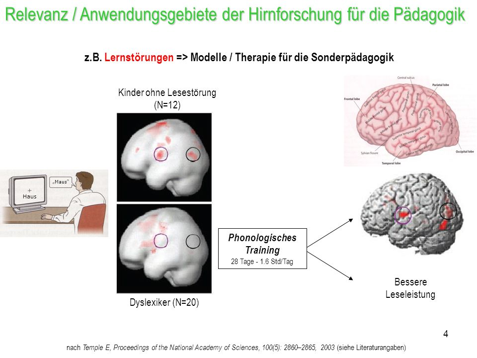 Phonologisches Training