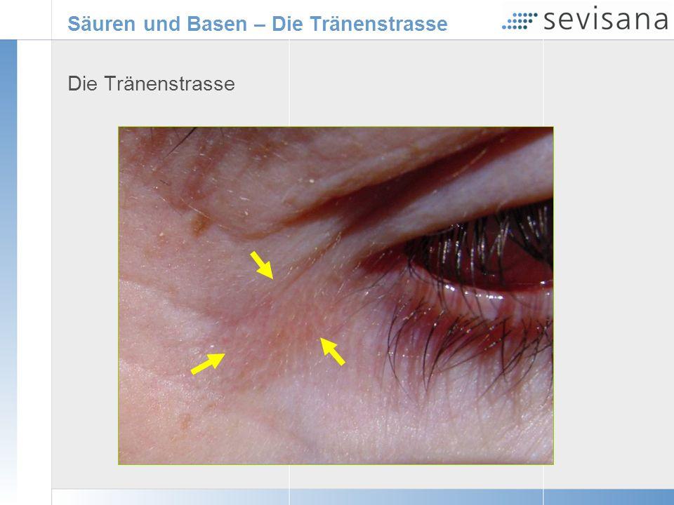 Säuren und Basen – Die Tränenstrasse