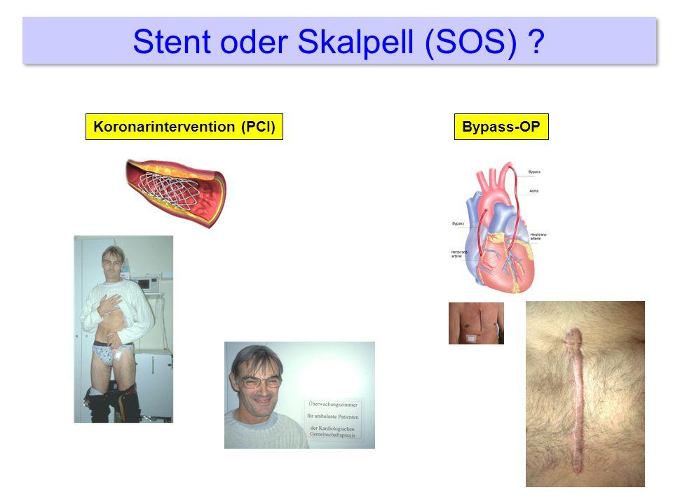 Stent oder Skalpell (SOS)