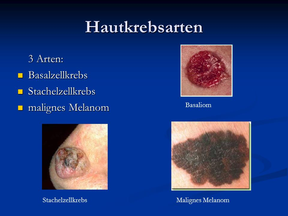 Hautkrebsarten 3 Arten: Basalzellkrebs Stachelzellkrebs
