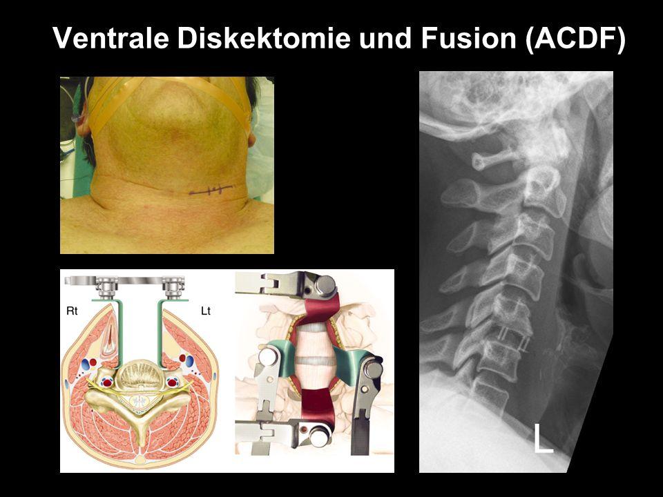 Ventrale Diskektomie und Fusion (ACDF)