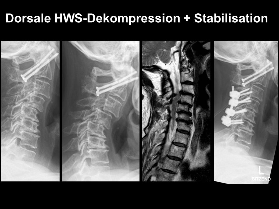 Dorsale HWS-Dekompression + Stabilisation