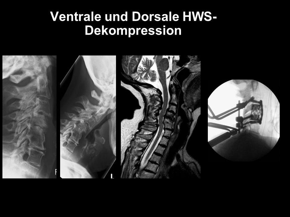 Ventrale und Dorsale HWS-Dekompression