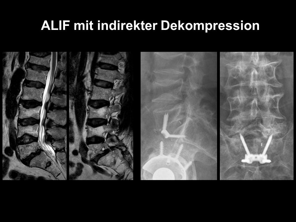 ALIF mit indirekter Dekompression