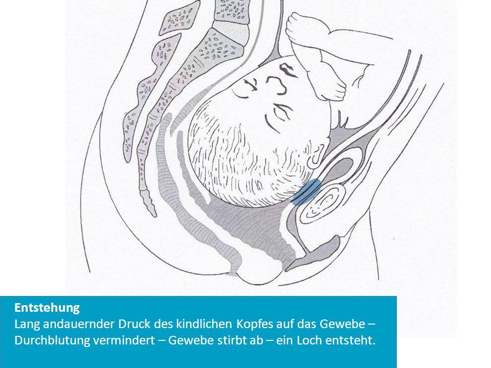 Entstehung Lang andauernder Druck des kindlichen Kopfes auf das Gewebe –