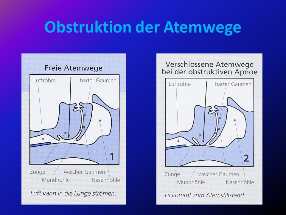 Obstruktion der Atemwege
