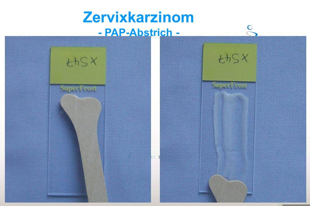 Zervixkarzinom - PAP-Abstrich - Aldara 11