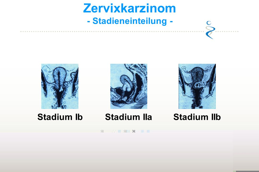 Zervixkarzinom - Stadieneinteilung - Stadium Ib Stadium IIa