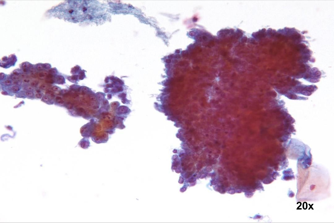 20x Endozervikales Adenokarzinom und Adenocarcinoma in situ