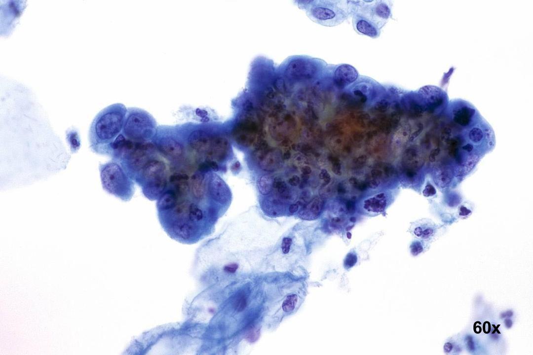 60x Adenocarcinoma in situ (AIS) AIS mit prominenten Nukleolen