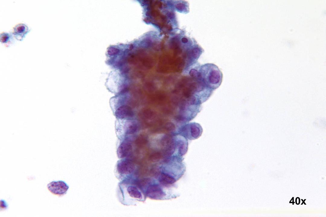 40x Endozervikales Adenokarzinom
