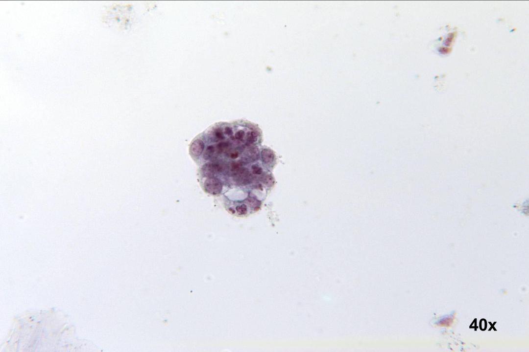 40x Adenokarzinom des Endometriums