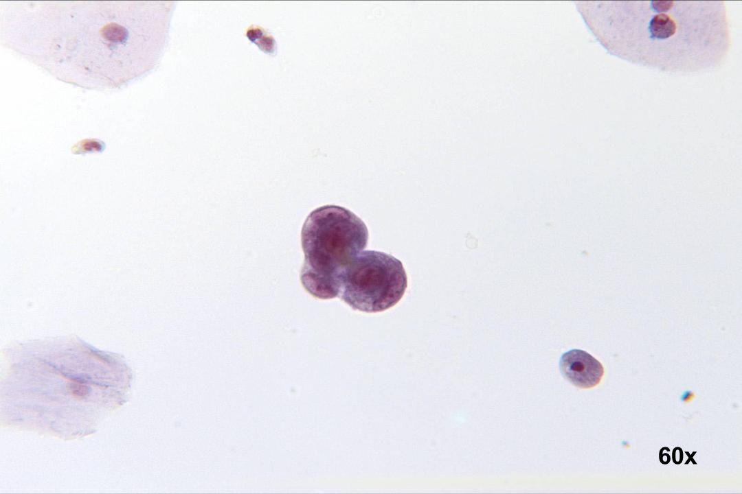 60x Adenokarzinom des Endometriums