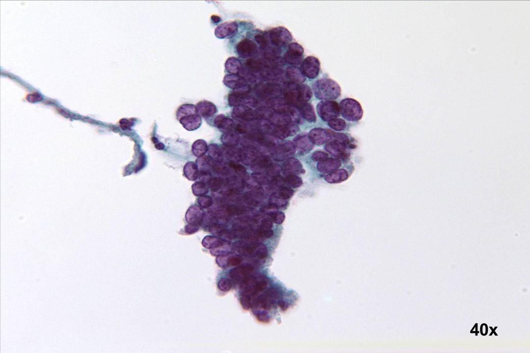 40x Adenocarcinoma in situ (AIS)