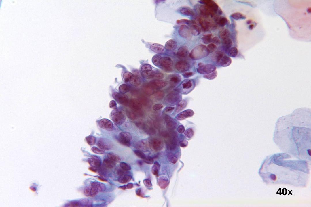 40x Adenocarcinoma in situ (AIS) Beachten Sie die Mitosefiguren.