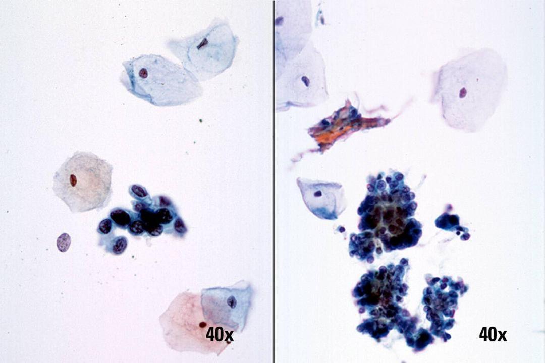 HSIL und Endometriumzellen