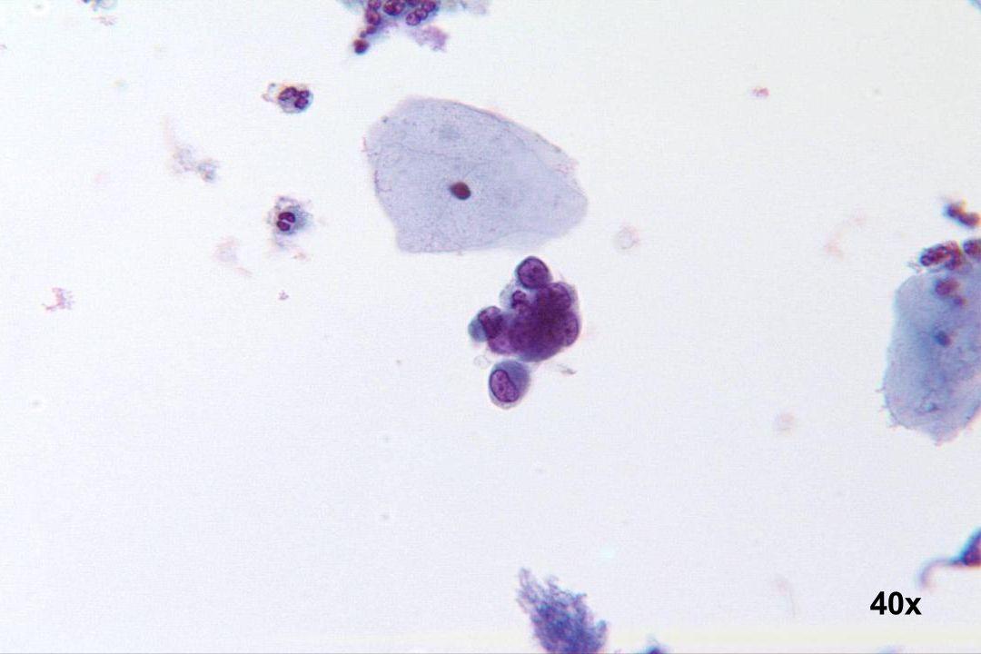 40x Endometriumzellen Kleiner Zellverband mit exzentrischer Kernlage