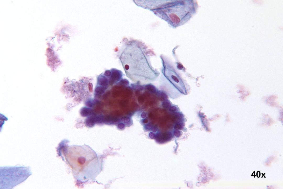 Endometriumzellen Klassischer dreidimensionaler Verband mit dichtem, zentralen Kern und Polychromasie.