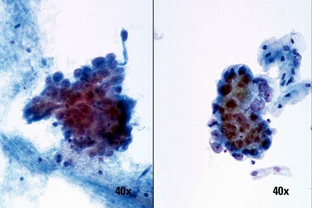 Nicht verhornendes Plattenepithelkarzinom und Adenokarzinom