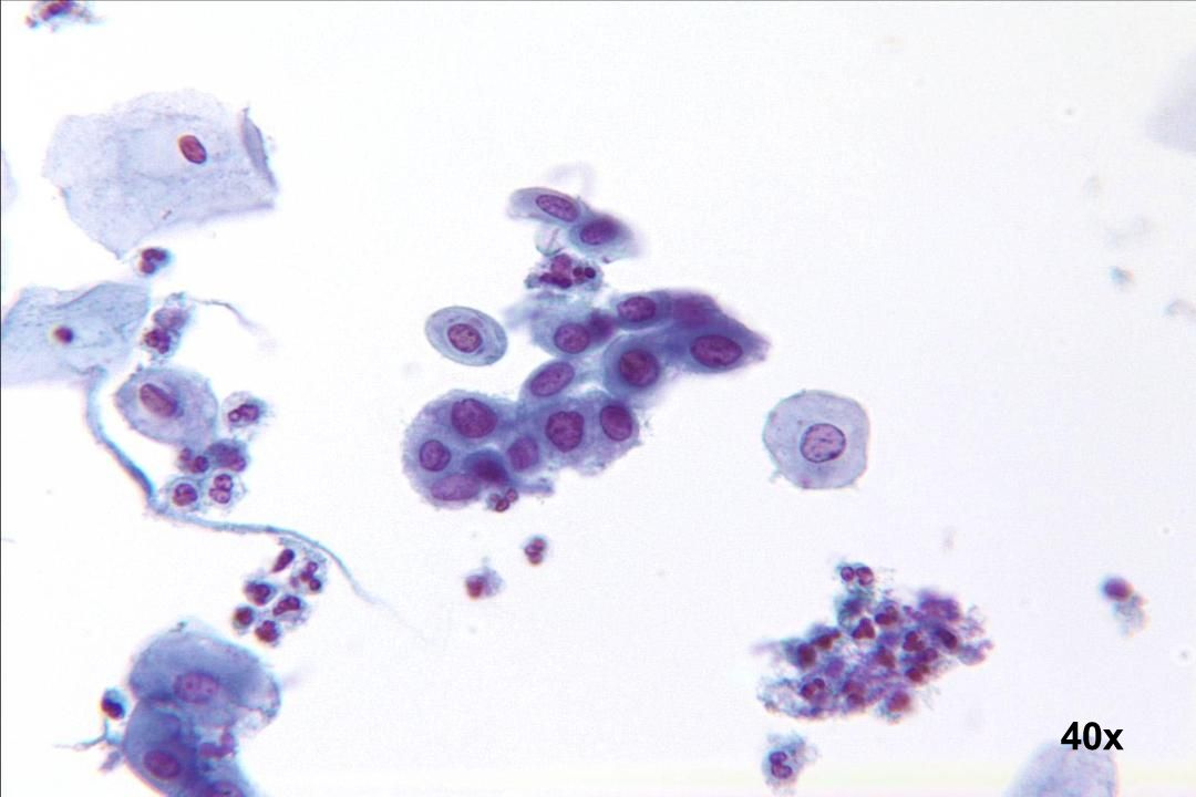 40x Unreife Plattenepithelmetaplasie