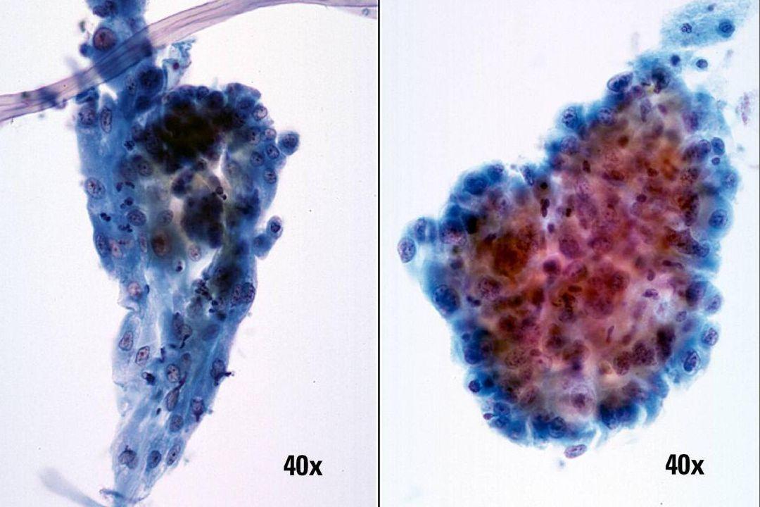 Plattenepithelkarzinom und Regeneration